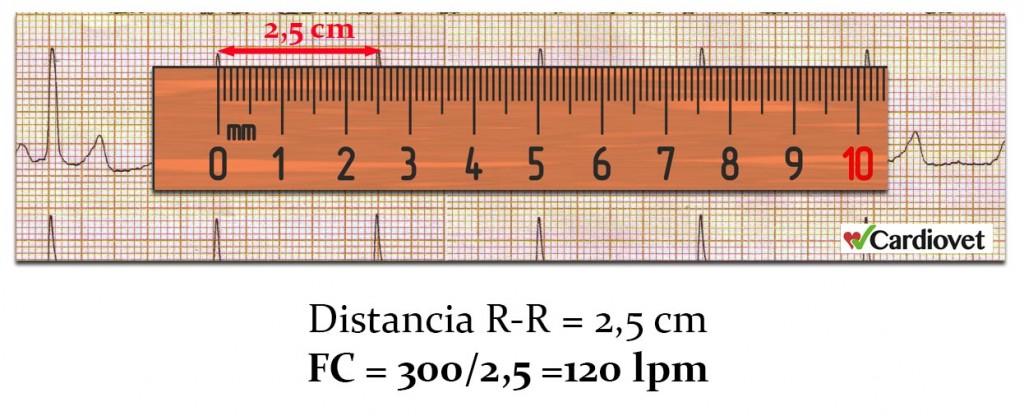 Calculo frecuencia cardiaca 1