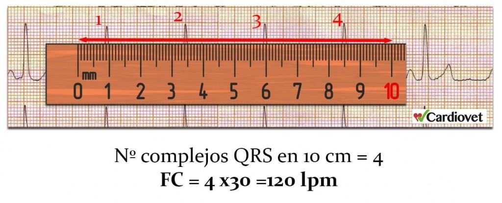 Calculo frecuencia cardiaca 2