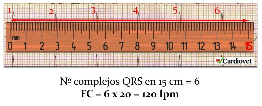 Calculo frecuencia cardiaca 3