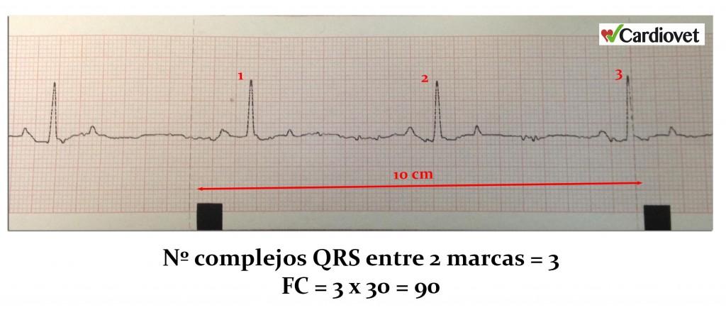 Calculo frecuencia cardiaca 4