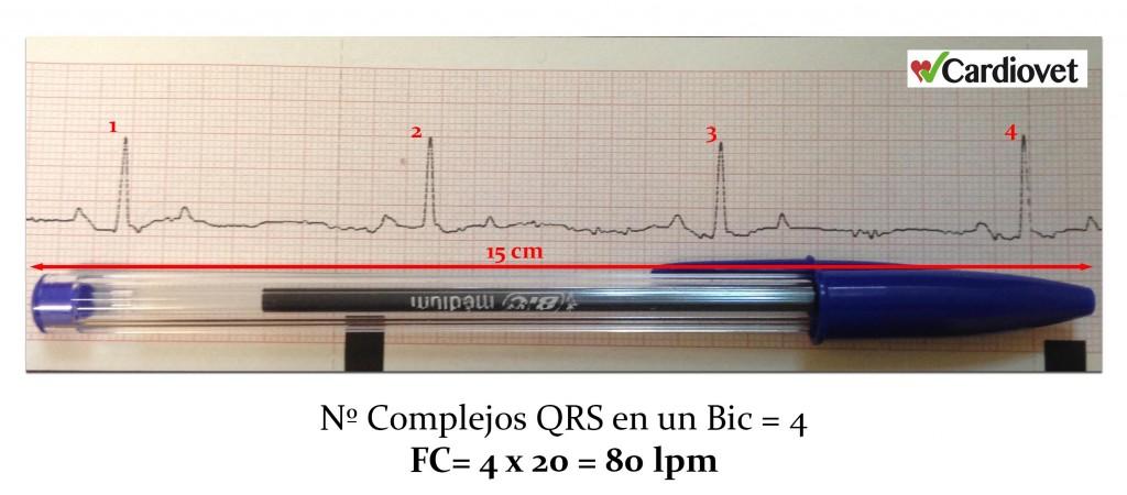 Calculo frecuencia cardiaca 5 - copia