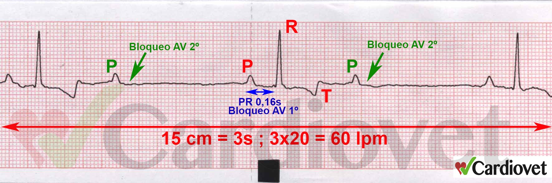 ECG del mes ene-feb 2016 Bloqueo AV 1ºy 2º solución