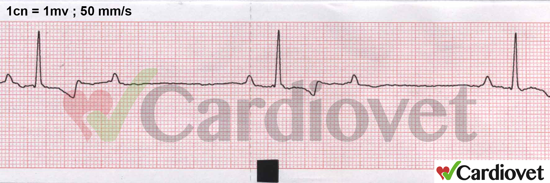ECG del mes ene-feb 2016 Bloqueo AV 1ºy 2º