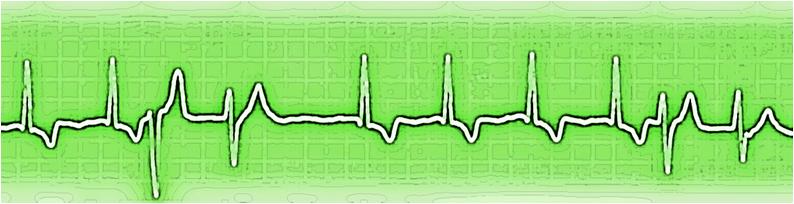 Arrtimias ventriculares verde