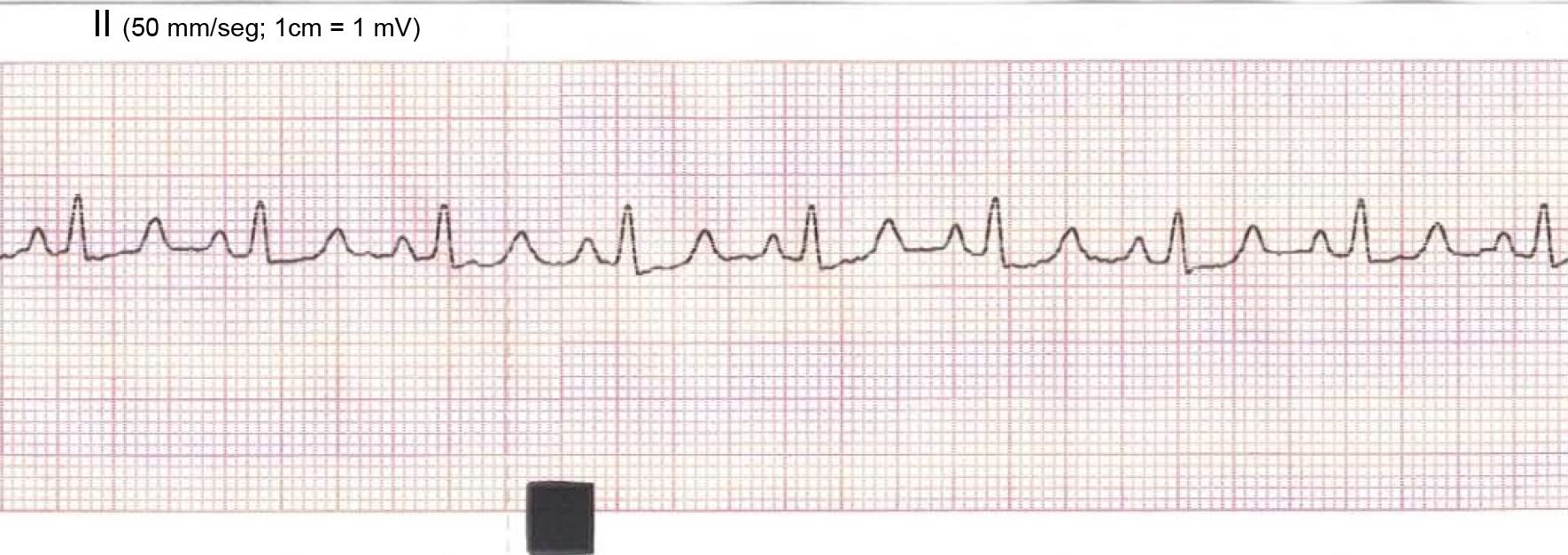ECG del mes mayo 2016 QRS bajo votaje tumor base corazón DerII