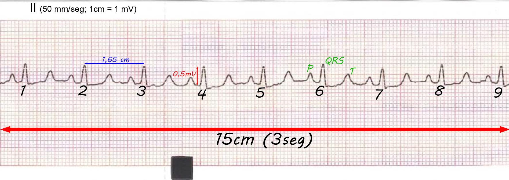 ECG del mes mayo 2016 QRS bajo votaje tumor base corazón solución